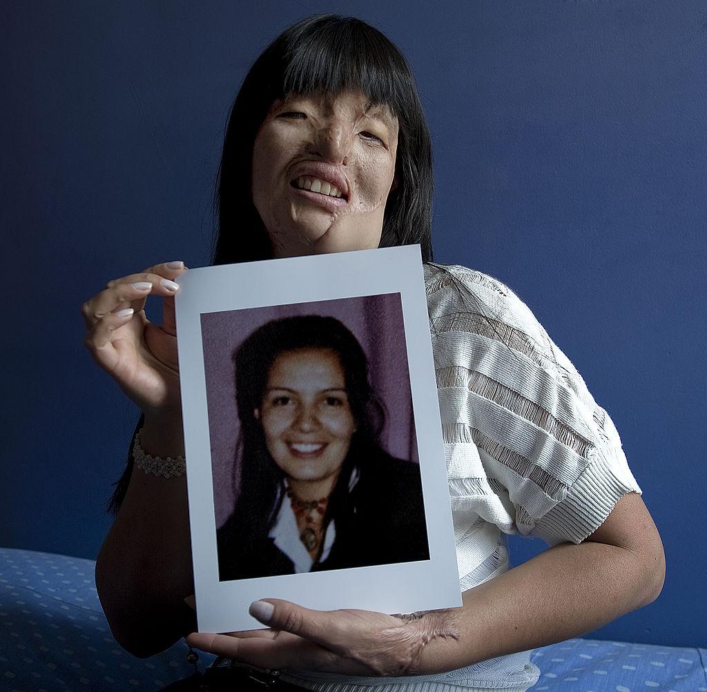 La colombiana Nubia Espitia posa junto a una foto suya antes del lamentable ataque. Espitia, de 37 años, fue atacada con ácido en 2008, y atribuye la agresión a una vesina envidiosa.