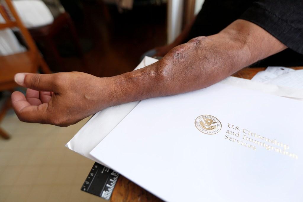 La necesidad de un trasplante de riñón motivó a José Sánchez a no demorar más convertirse en ciudadano estadounidense. Sánchez lleva ocho años teniendo que hacerse diálisis tres veces a la semana.