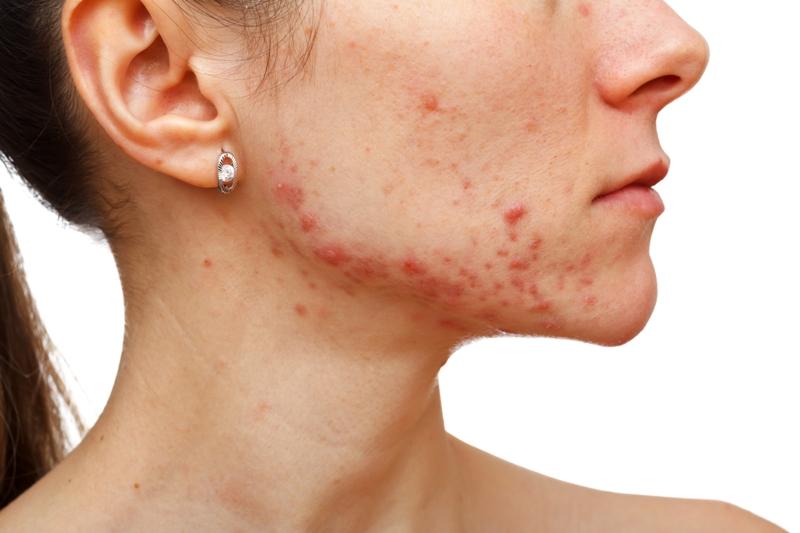 Puede resultar en un problema grave el apretar los barros bobos o sin cabeza.