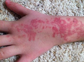 Así quedó la mano de un menor de cinco años luego de tener una reacción con 'henna negra'.