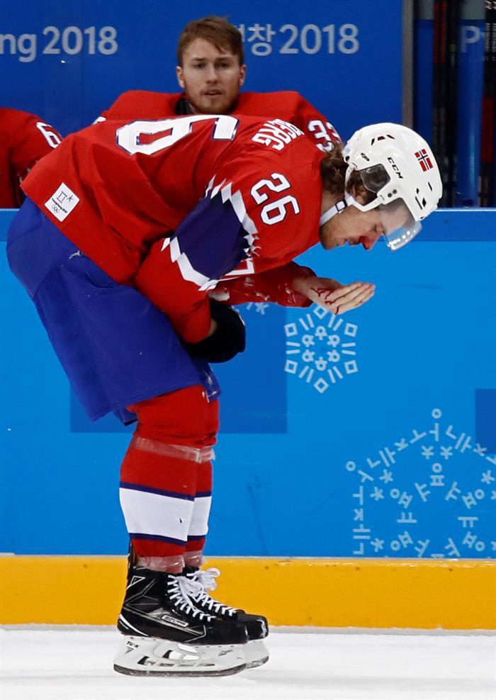 Kristian Forsberg, jugador de Noruega, sufrió un dramático corte en la nariz