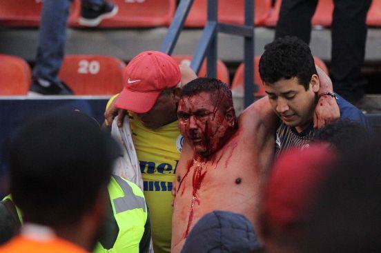 La violencia dejó 10 lesionados, de los cuales tuvieron que ser hospitalizados, 10 vehículos de policía y 20 privados fueron dañados.